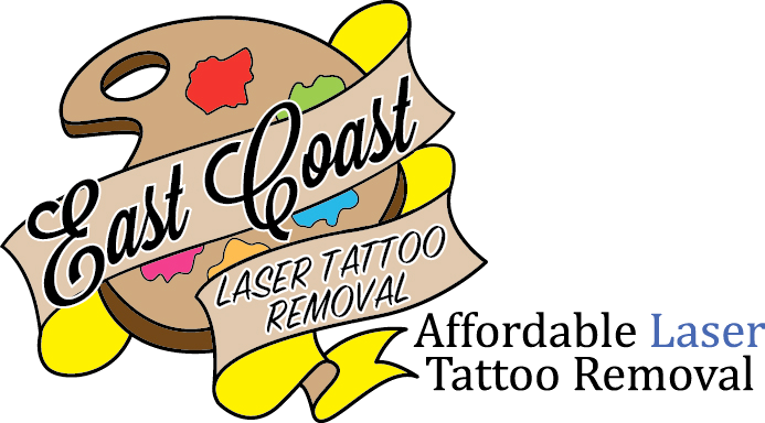 Laser Tattoo Removal | Richmond, VA | East Coast Laser Tattoo Removal