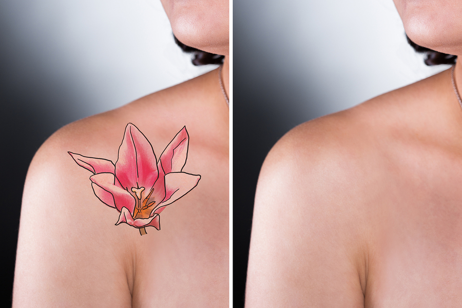 Laser tattoo removal richmond va east coast laser for Tattoo removal 2017
