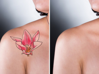 Tattoo Removal Positives