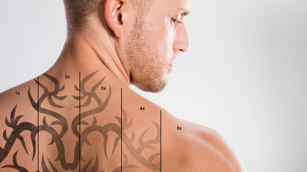 FAQ | Richmond, VA | East Coast Laser Tattoo Removal